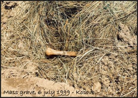 Kosovo mass grave bone (2)